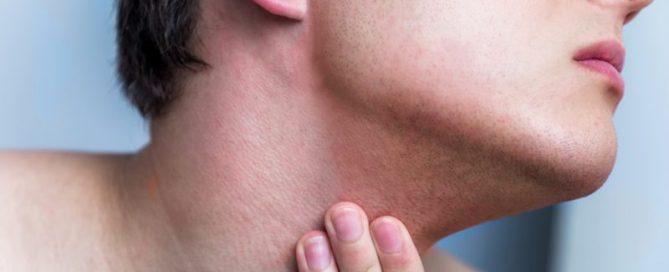 irritazione da rasatura